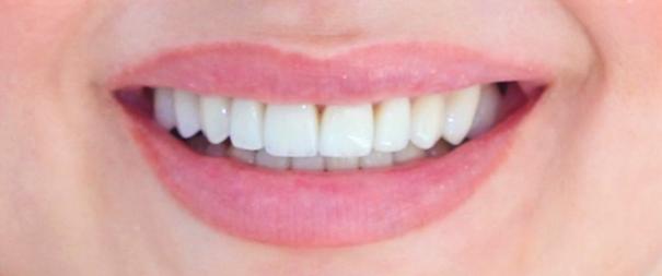 3. W celu poprawy estetyki uśmiechu w Centrum Implantologii i Ortodoncji Adrianny Badory wykonaliśmy stosunkowo długie licówki porcelanowe. Na zdjęciu wewnątrzustnym licówki wyglądają na nieproporcjonalnie długie