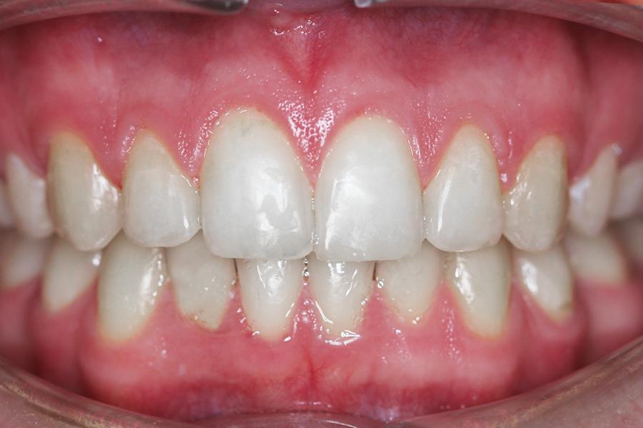 ortodoncja pacjent po