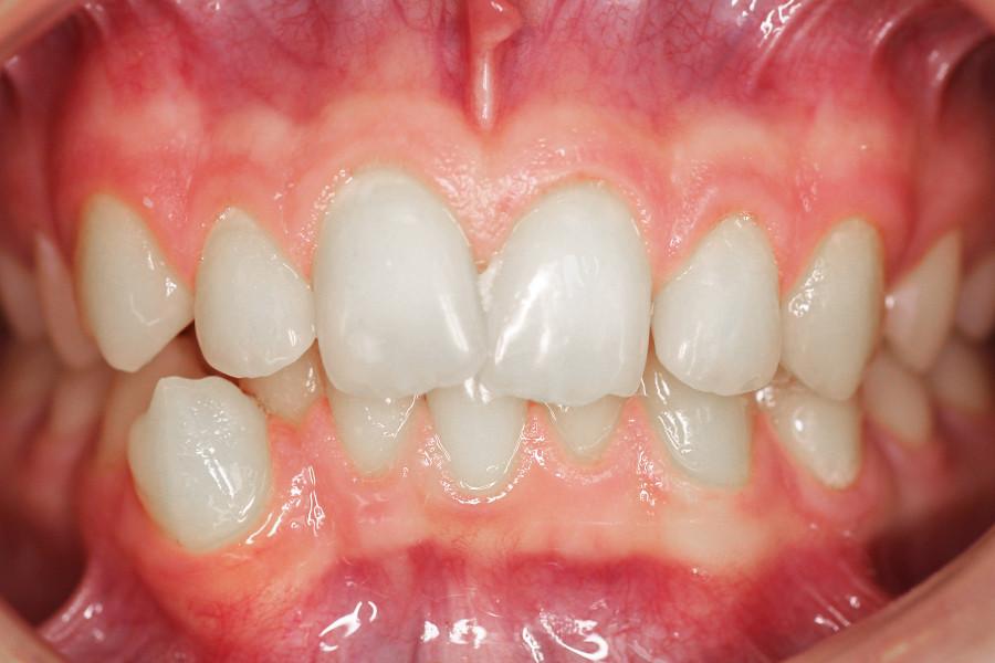 ortodoncja pacjent przed